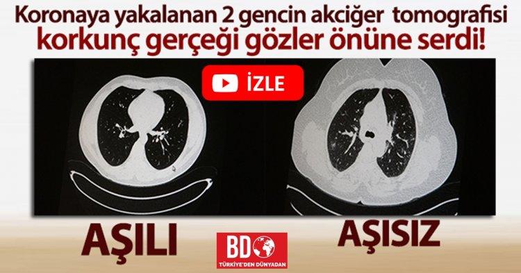 Aşılı ve aşısız olarak koronaya yakalanan 2 gencin akciğer tomografisi gerçeği gözler önüne serdi!